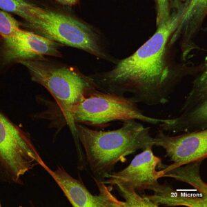 Пуповинные мезенхимальные стволовые клетки (UCMSC)