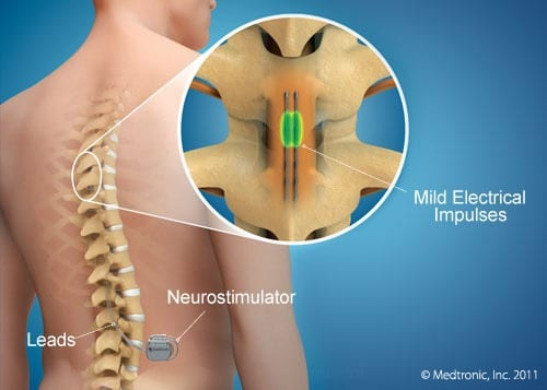 Epidural Stimulation Stem Cell Treatment